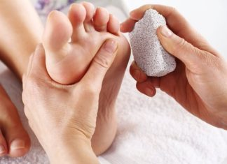 How to Remove and Prevent Calluses Naturally-1