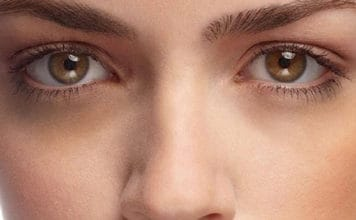 How to Get Rid of Black Circles Under Your Eyes