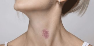How to Make a Hickey Go Away– The Best Remedies