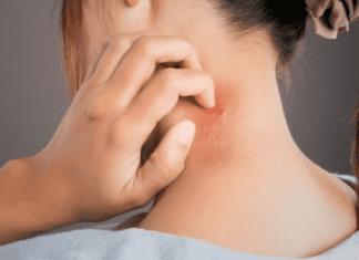 5 Possible Treatments for Hidradenitis Suppurativa